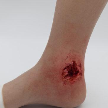 Satan's wound
